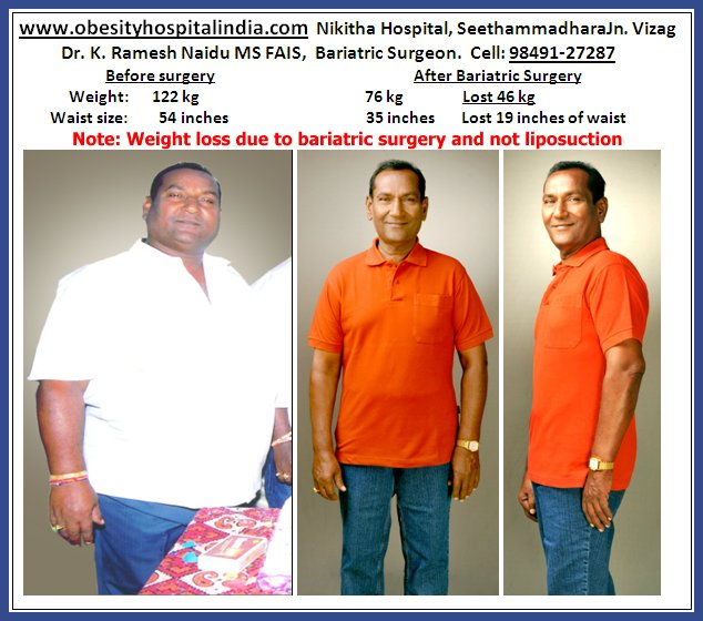 1st Bariatric Surgery In Andhra Pradesh Weightloss Obesity Hospital Vizag Nikitha Hospitals Visakhapatnam India Asia Centre For