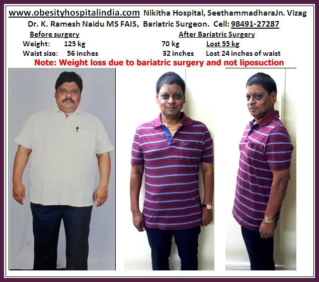 1st Bariatric Surgery In Andhra Pradesh Weightloss Obesity Surgery